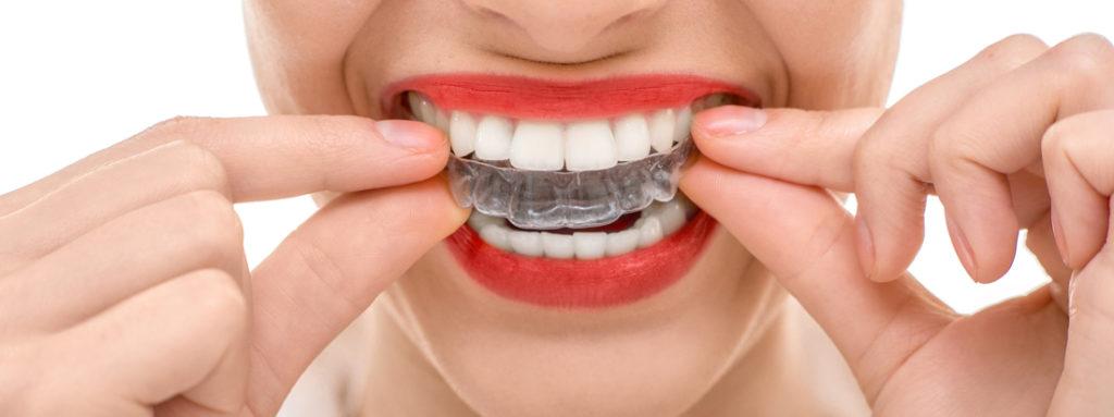 Invisalign Cosmetic Dentist